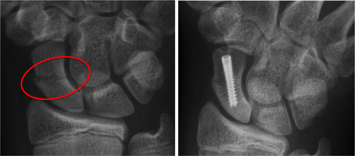 Left : Broken scaphoid bone with gapping across the fracture site.  Right : Screw is placed inside the bone and across the fracture site, this squeezes the two pieces together to facilitate healing.