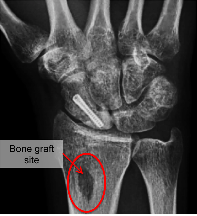 In surgery for scaphoid non-unions, bone can be taken from the radius bone to fill in the defect.