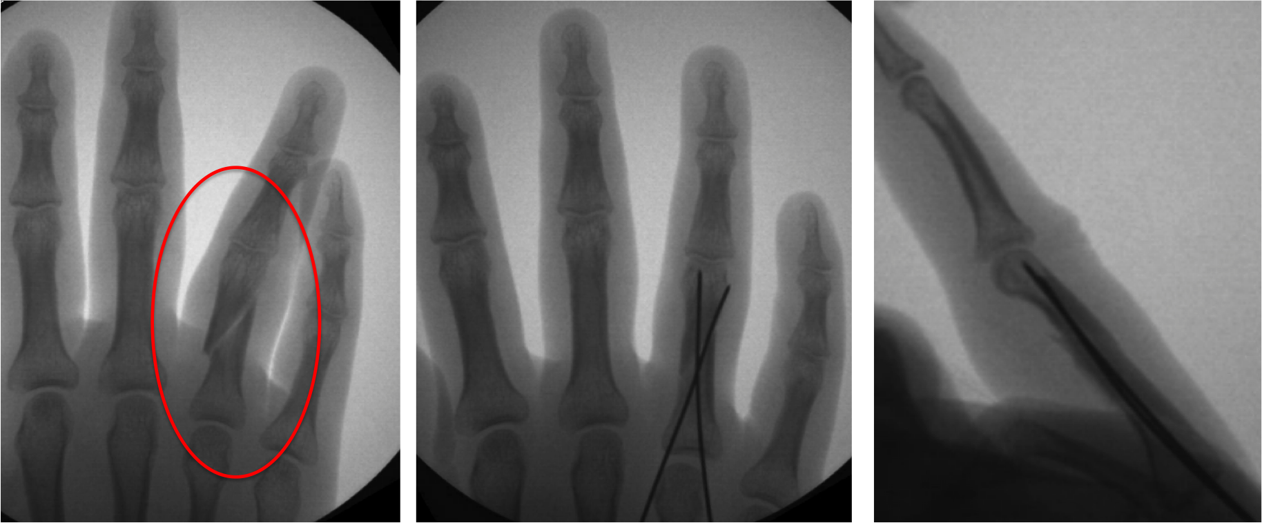 Fracture of the proximal phalanx bone of the ring finger. Spiral, oblique fractures such as this one tend to cause rotational deformities of the finger. In the x-ray on the left, the ring finger can be seen overlapping the pinkie finger. The abnormal positioning will adversely affect function of the finger if it is left to heal in this bent and rotated position. An outpatient procedure can improve the alignment and allow the bone to heal in a normal position. As shown above, the fracture is aligned, and temporary pins are placed through the skin (no incision) to hold the two fractured pieces together. The pins are removed 2-3 weeks later in the office, and motion is started. Strengthening and more vigorous activities are resumed once the fracture has healed (~6 weeks).