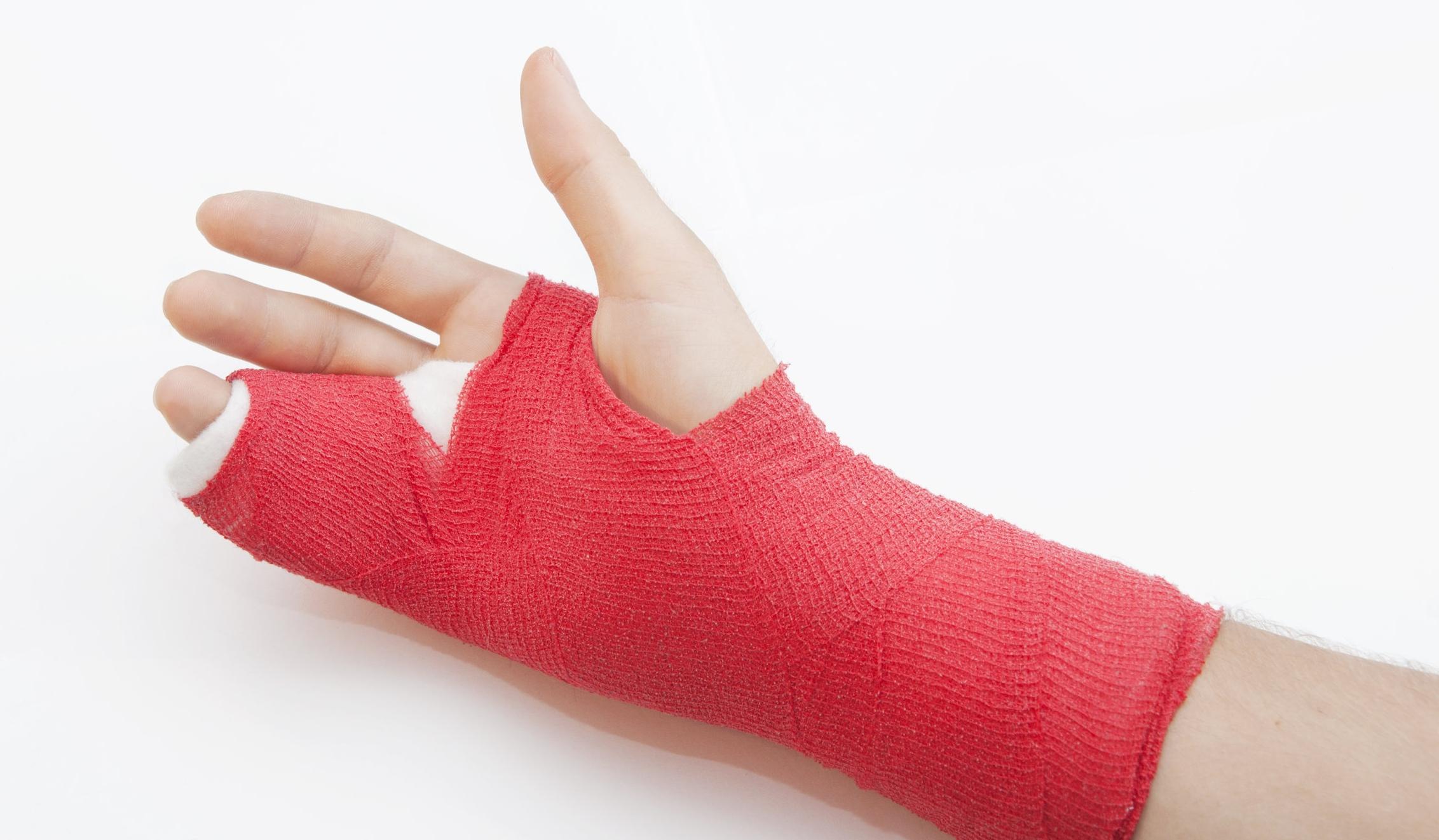 hand fracture cast.jpg