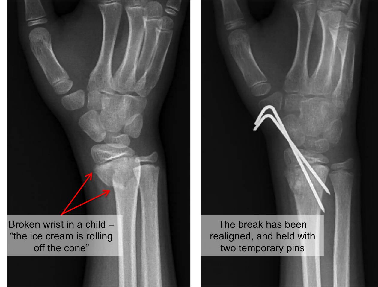 Distal radius fracture.png