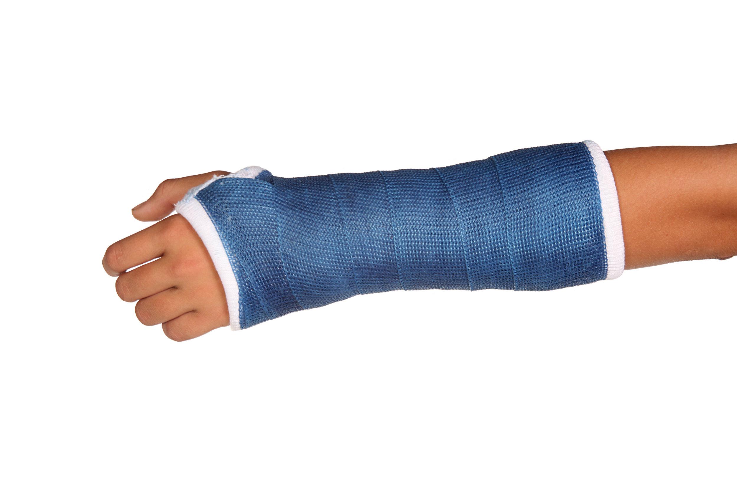 I broke my wrist, now what?