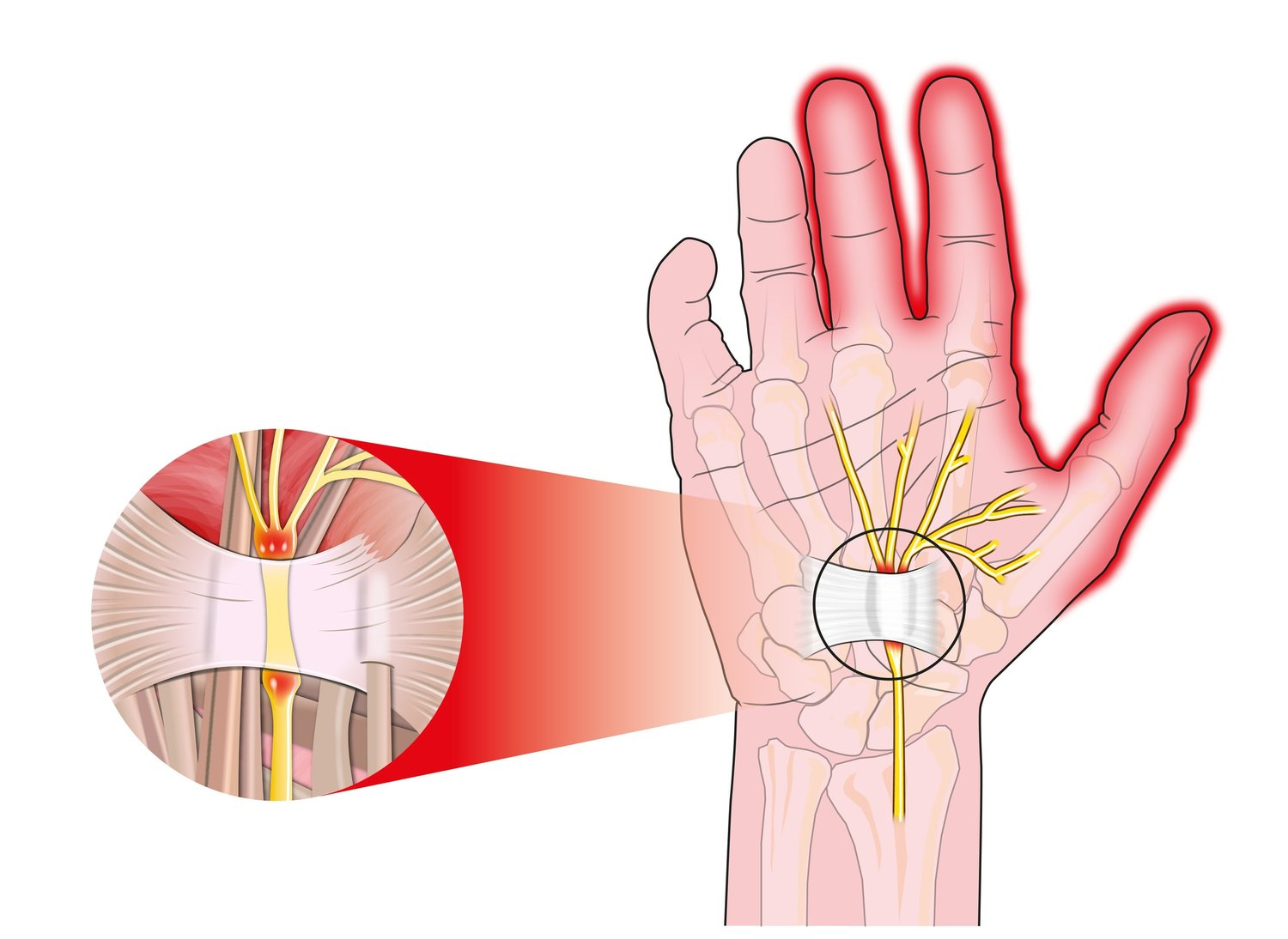 "Carpal tunnel syndrome is caused by compression, or pinching, of the ""median nerve"" in the wrist. This causes numbness, tingling, or pain in the thumb, index, and middle finger."