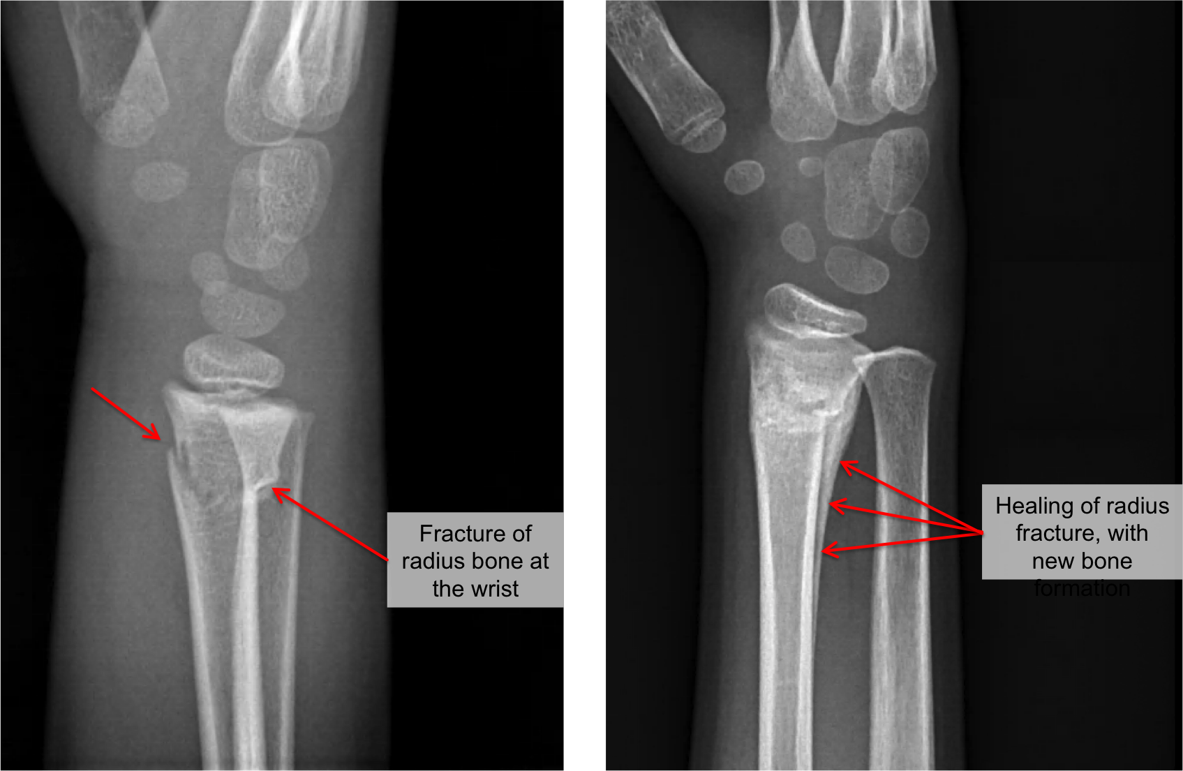 Example 2.   Left:  more severe fracture that extends completely across the radius bone.  Right:  Healing after 6 weeks, showing a new layer of bone formation around the fracture. With more time, the fracture will disappear, as the new bone blends into the old bone.