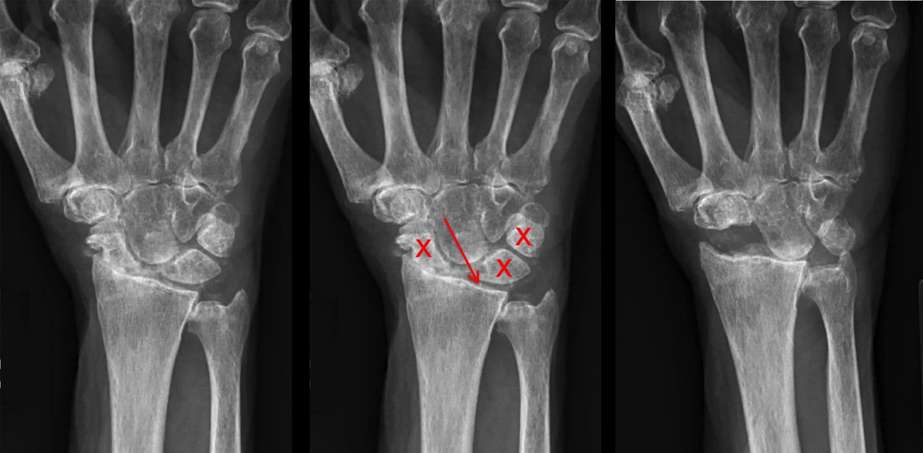 scaphoid artrosis