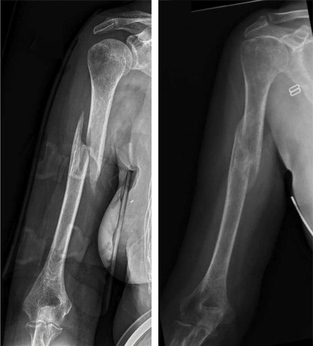 """Non-surgical treatment with a brace.  Many humerus fractures can be treated without surgery. The humerus shaft fracture above was successfully treated in a """"Sarmiento brace"""", which wraps around the upper arm and holds the bone aligned while it heals."""