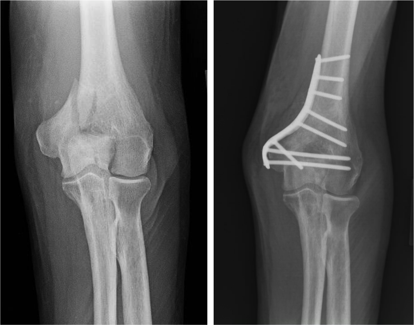 """Humerus ORIF (open reduction internal fixation).  A """"distal"""" humerus fracture is a break at the end of the humerus bone that oftentimes will extend into the elbow joint. These fractures are oftentimes treated with a metal plate and screws to hold the pieces together. Aligning the joint surface is important for restoring motion and function."""