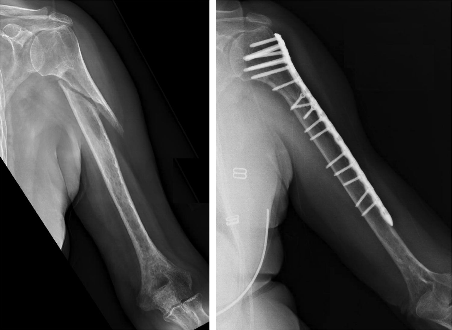 """Humerus non-union.  A """"non-union"""" is a fracture that does not heal on its own. This humerus fracture did not heal despite ~8 months in a brace, and despite the use of a bone stimulator (image on left). For humerus non-unions that do not heal in a brace, surgery with bone graft, a metal plate, and screws can be successful (as shown in the image on the right)."""