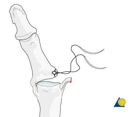 A suture anchor is placed into the proximal phalanx. The attached sutures allow for the torn ligament to be stitched back down to the the bone. Image from  AO Foundation .