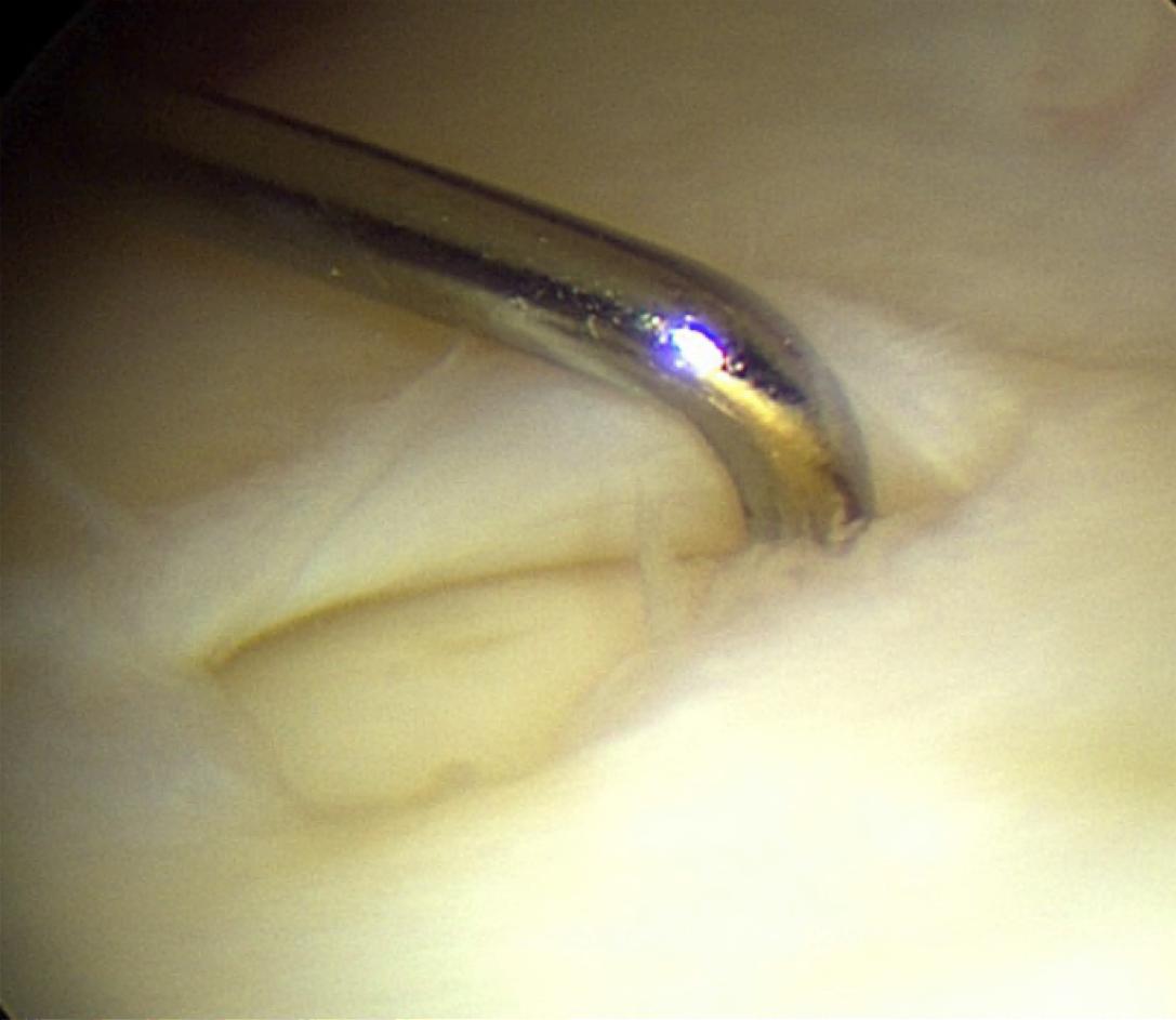 TFCC tear arthroscopy.png