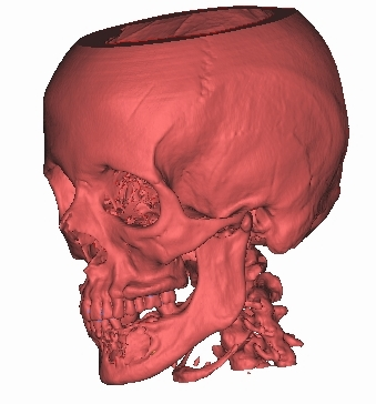 vspr bone 3d.jpg