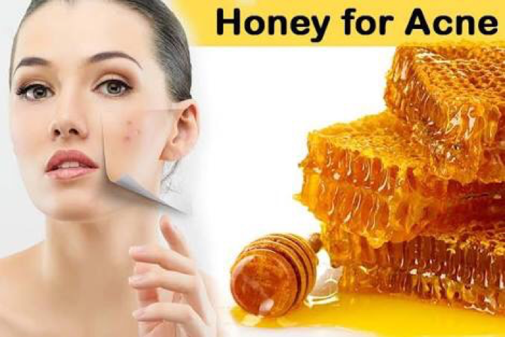 apply honey to remove pimples