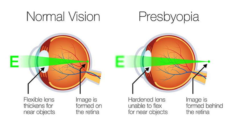 presbyopia.png