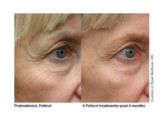 Eyes, 4 Pelleve treatments, post 4 months (image 1).png