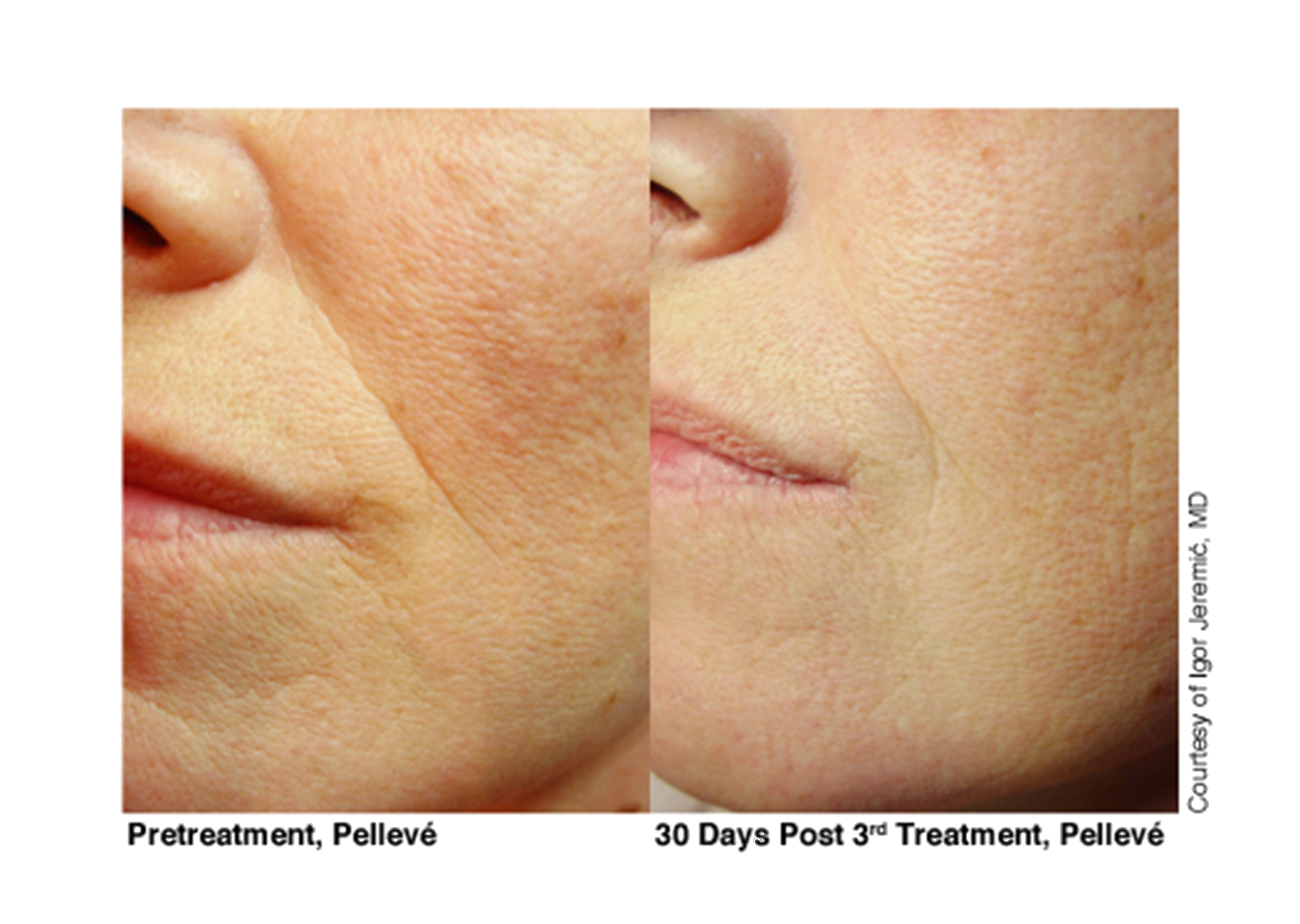 7-Pelleve Before & After Treatment Photos (image 6).png