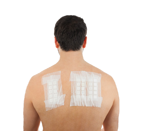- At Village Dermatology in Houston, we perform extensive patch testing on patients with possible skin allergies.
