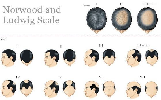 Lugwig scales of male hair loss