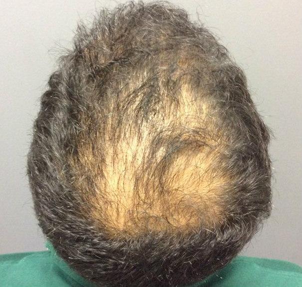Hair Loss in Houston