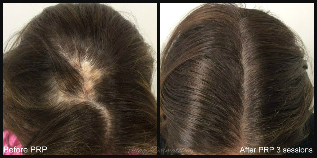PRP for alopecia areata B and A.jpg