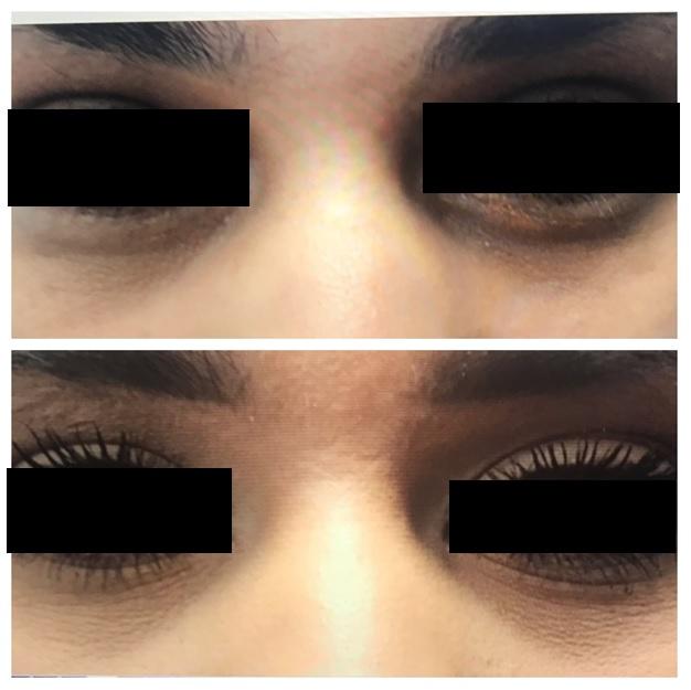 Botox9.jpg