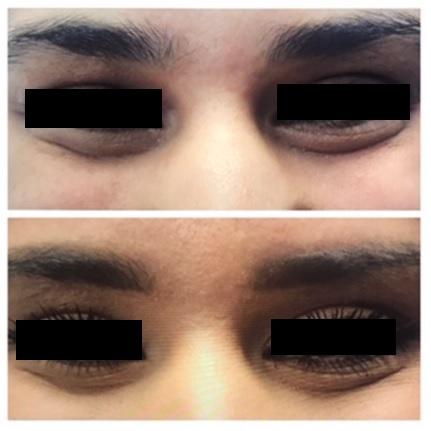 Botox10.jpg