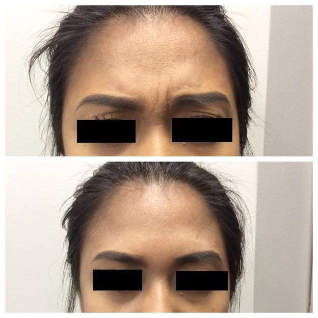Botox13.jpg