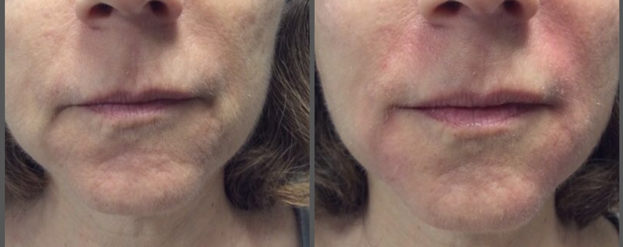 A little can go a long way.  Smile lines, corners of the mouth and revolumizing the lower face.  Our photos are not filtered the patient is red from molding the product.  Micro-cannula used so the patient has zero bruising!