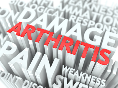 article-009-arthritis.jpg