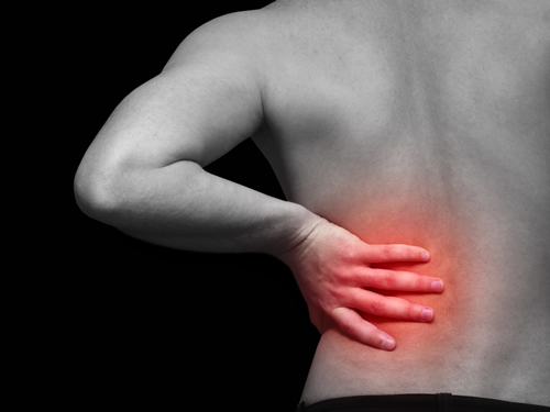 Facet Syndrome Low Back Pain Sydney