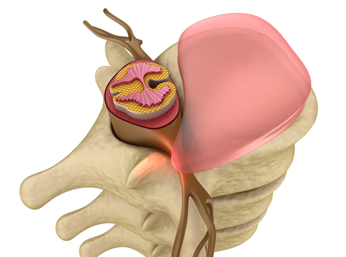 Bulging Disc Chiropractor