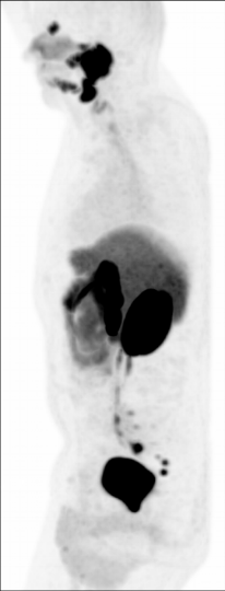 Special ways to image cancer: PSMA-F18 PET scan demonstrating cancer hidden in lymph nodes.