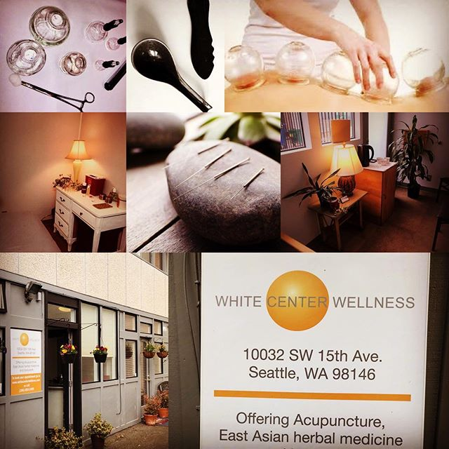 At White Center Wellness Clinic we treat you, not your condition.  That means we listen carefully so that we can provide a personalized treatment that gets results.  That means you feel better.  We use acupuncture, cupping, and herbs among other things to ensure that you do get to where you are feeling your best.  All in private, clean and easily accessible rooms.  Feel better today, start with White Center Wellness Clinic!  #whitecenterwellness #whitecenteracupuncture #whitecenterwell #getwellwhitecenter #whitecenterproud