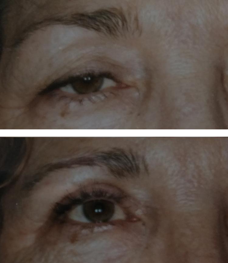 Blepharoplasty/eyelid tuck before & after