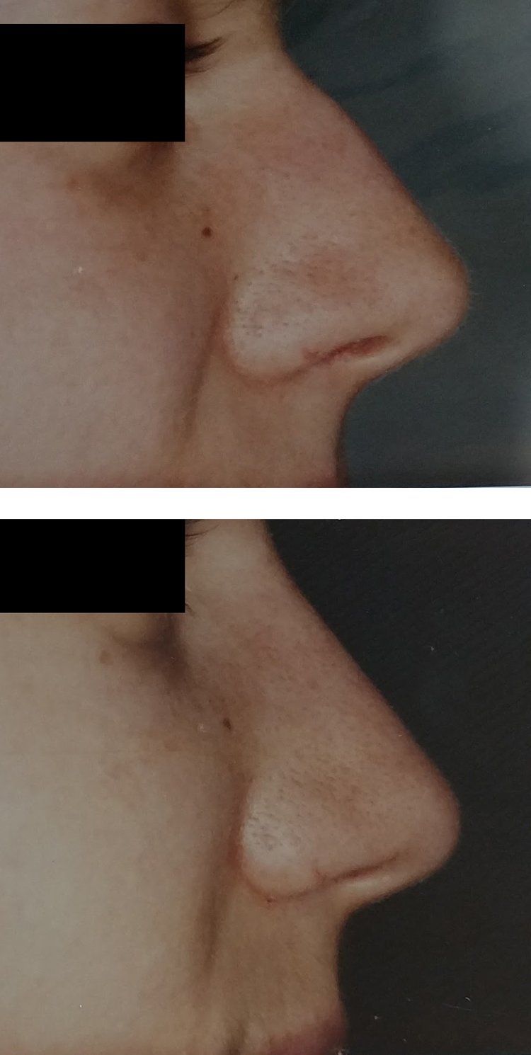 Rhinoplasty/nose job before & after