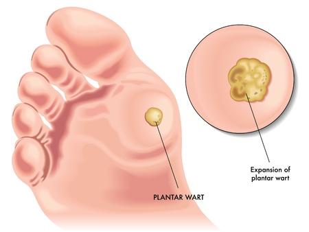 foot wart growing papilloma hpv negativo