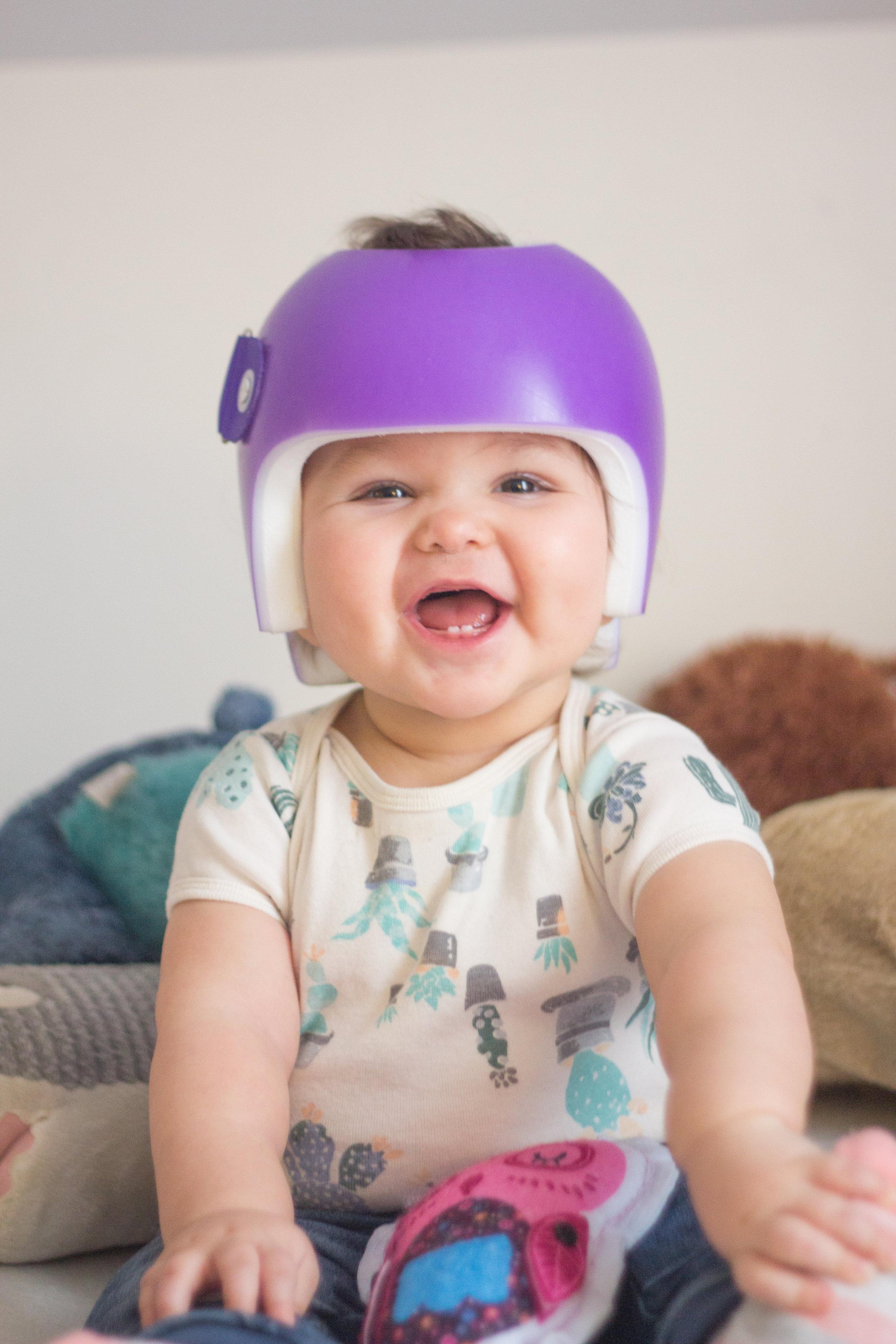 Starband Plagiocephaly Treatment Helmet