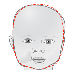 Plagiocephaly head shape - front view