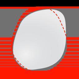 Plagiocephaly head shape - top view