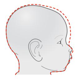 Orthomerica STARband Plagiocephaly Flat Head Syndrome head shape red dotted line normal - side.png