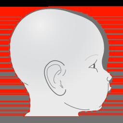 Plagiocephaly head shape - side view