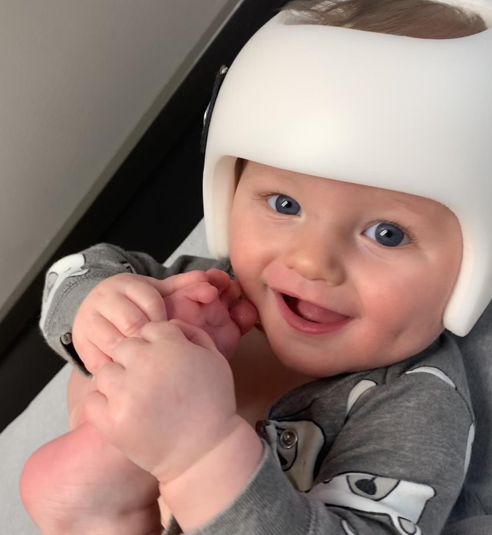Orthomerica STARband Plagiocephaly helmet 2019.jpg