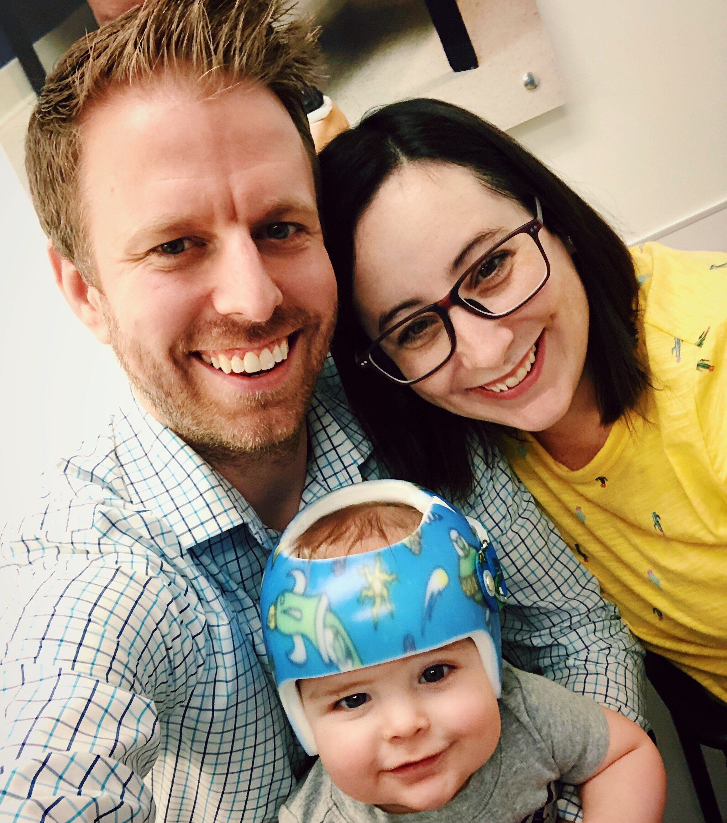STARband plagiocephaly success story