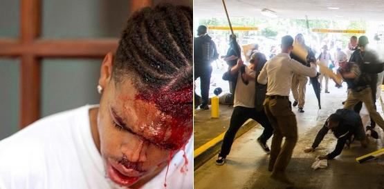 Deandre Harris, during and after attacks by white supremacists. (google.com)
