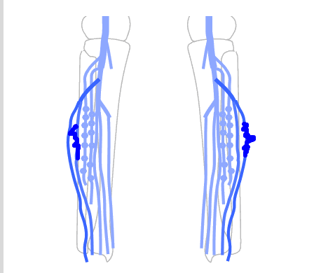 Venous Diagrams