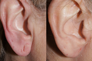 Earlobe Reconstruction Facial Plastic Surgery Beverly Hills 2