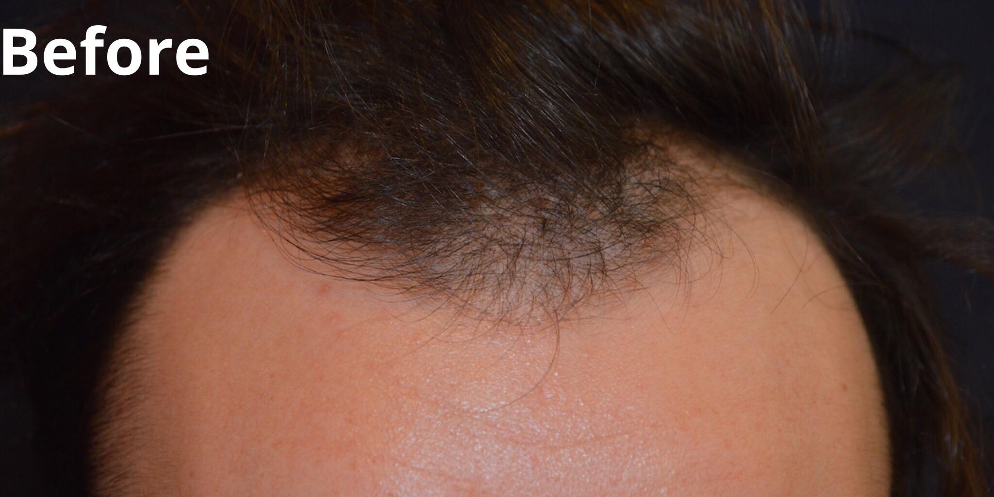 Hair Transplant Facial Plastic Surgery Beverly Hills 2