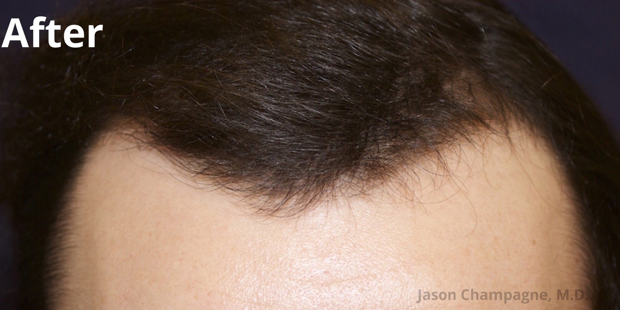Hair Transplant Facial Plastic Surgery Beverly Hills 3