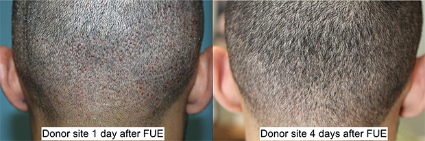 Top: Before and 1 day after 1500 FUE to restore the hairline, temporal peaks, vertex and crown. Bottom: Donor site 1 day and 4 days after FUE. Notice that the donor sites are well-hidden within days after the procedure with no visible scar.