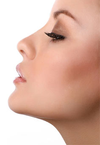 Neck Liposuction Facial Plastic Surgery Beverly Hills 1