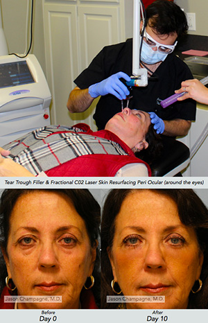 Filler Treatment Facial Plastic Surgery Beverly Hills 2